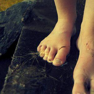 Žluté nehty na nohou a rukou